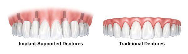 implant dentures vs traditional dentures